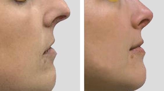Nariz sob tensão. Redução nasal por via aberta, Tongue in a Groove e Spare Roof Technique. Ponta rodada  a pedido da paciente.