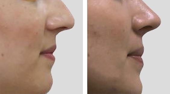 Nariz sob tensão. Redução nasal por via aberta, Tongue in a Groove e Spare Roof Technique. Ponta projetada a pedido da paciente.
