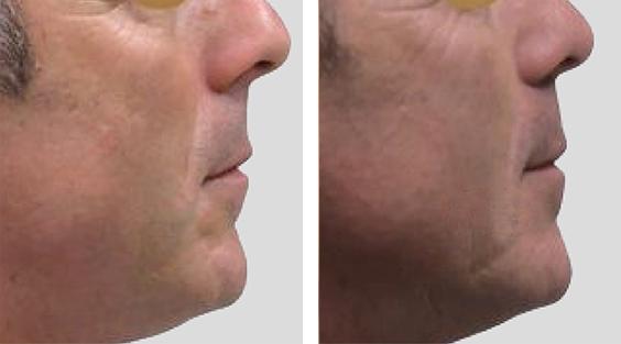 Nariz sob tensão. Redução nasal por via fechada, Tongue in a Groove e Spare Roof Technique.