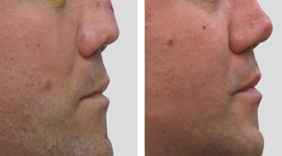 Rinoplastia de Revisão. Cirurgia prévia com enxerto de costela. Revisão aberta, confecção de diced cartilage com costela. Rinoplastia complexa.
